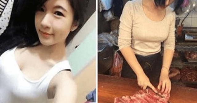 【※閲覧注意※】生の豚肉を10年間食べ続けた女性。全身が寄生虫まみれになった衝撃姿がこちら・・・