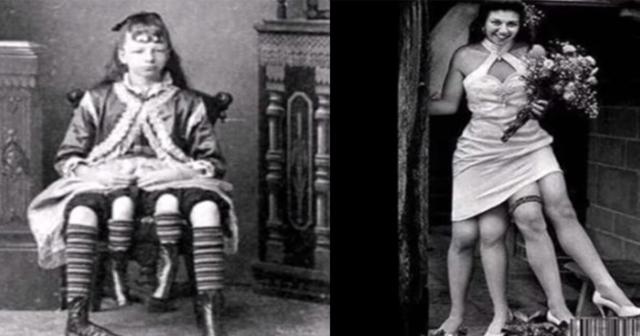 【見世物芸人で売れっ子】妹が寄生し4本足で生まれた女性。その奇跡の生涯に涙が…