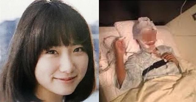 奇跡的に意識が回復した、アイドル・冨田真由さんの現在は?顔の傷や目の状態・後遺症に苦しむ日々・・・